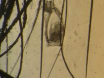 20131103猫ハジラミ3